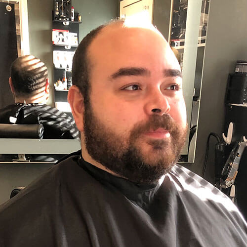hair-toppers-for-thinning-crown